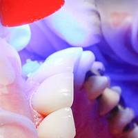 Типове Dental Implants Bulgaria 32